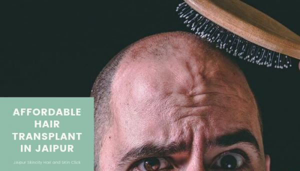 Affordable Hair transplant in Jaipur